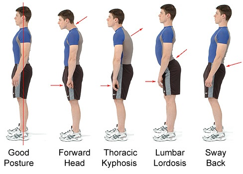 thoracic kyphosis how to stop the pain